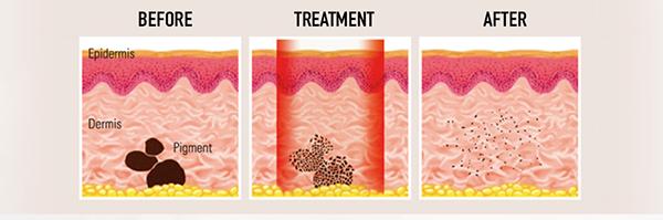 Laser-Tattoff-treatment
