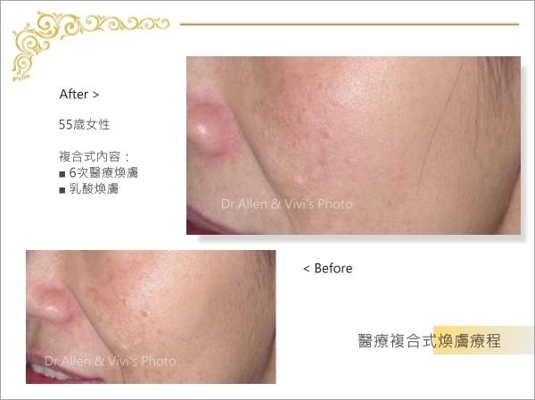 醫療複合式煥膚 (異色症)005-1