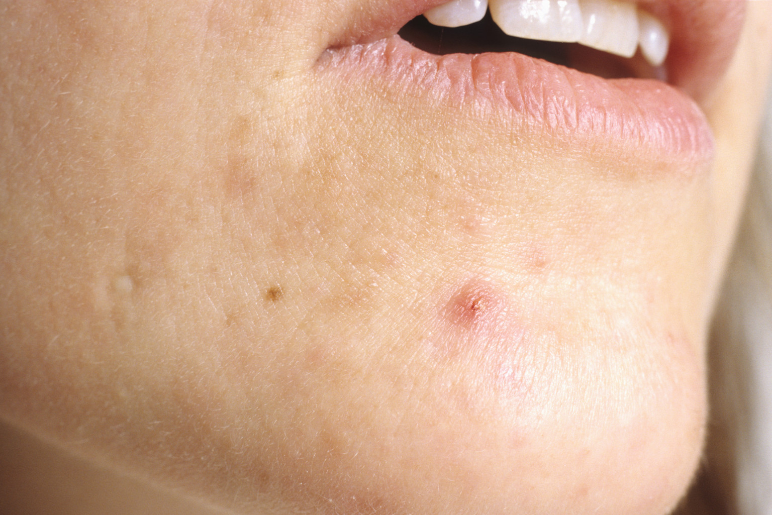 CHRONIC INFLAMMATION OF THE SKIN AFFECTING THE HAIR FOLLICLE. PROPIONIBACTERIUM ACNE BREAKS DOWN OILS AND IS ASSOCIATED WITH IT. ANTIBIOTICS HAVE PROVED EFFECTIVE. ACNE IS OFTEN COMPLICATED BY SECONDARY STAPHYLOCOCCUS INFECTIONS. CLOSE UP WOMANS CHIN SHOWING ACNE